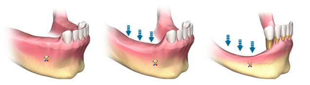 Aditie osoasa_pierderea dintilor laterali mandibulari
