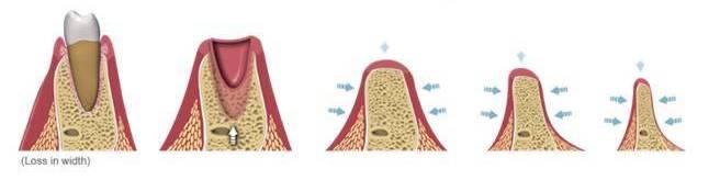 Rebsorbtia verticala si resorbtia orizontala dupa extractie