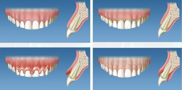 boala-parodontala-stadii