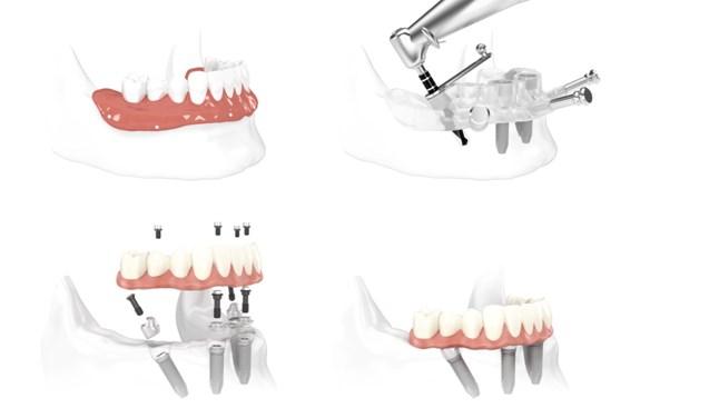 implant pentru toti dintii lipsa