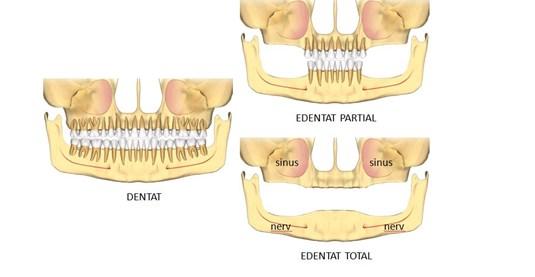 implant pentru toti dintii lipsa1