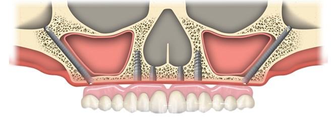 implantul zigomatic14