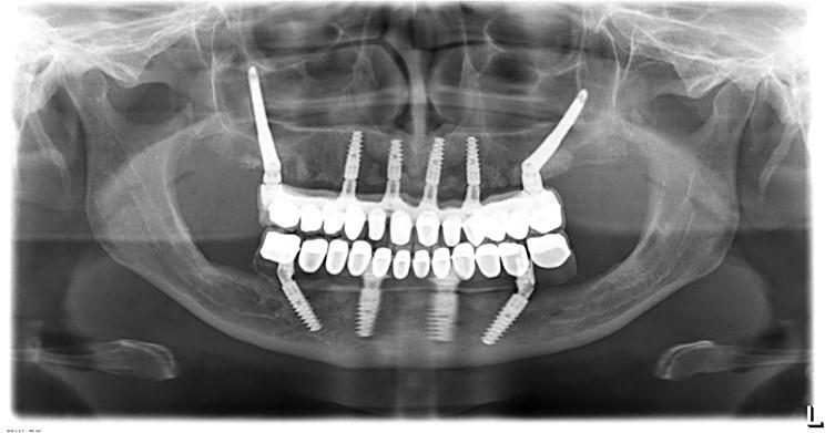 implantul zigomatic15
