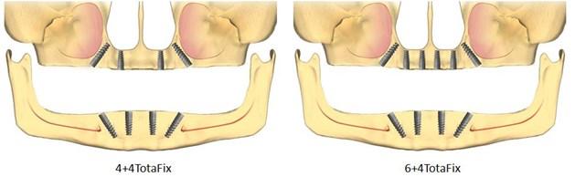 implanturi pentru toti dintii lipsa, totalfix