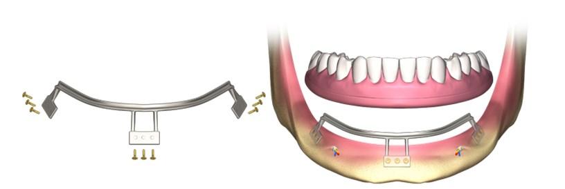 implanturi si alte lucrari