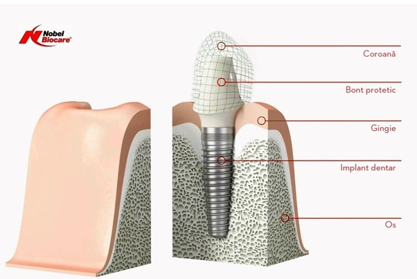 implanturi si tipuri de lucrari, componentele implantului dentar