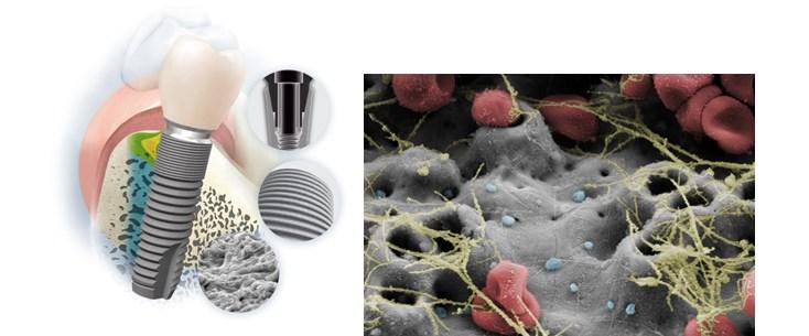 implanturi si tipuri de lucrari