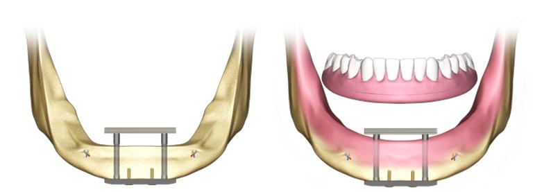 implanturi transosoare
