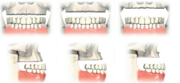 implanturi zigomatice 10