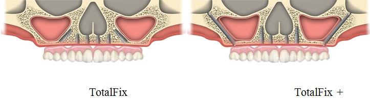 implanturi zigomatice17