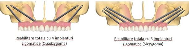 implanturi zigomatice