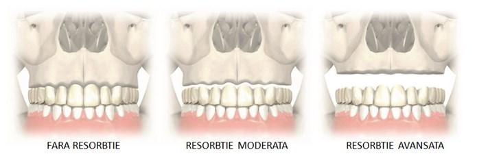 implanturi zigomatice3