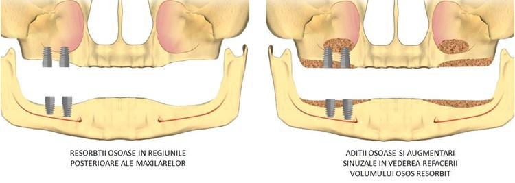 implanturi zigomatice4