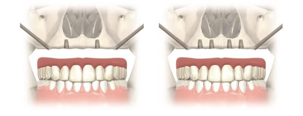 implanturi zigomatice8