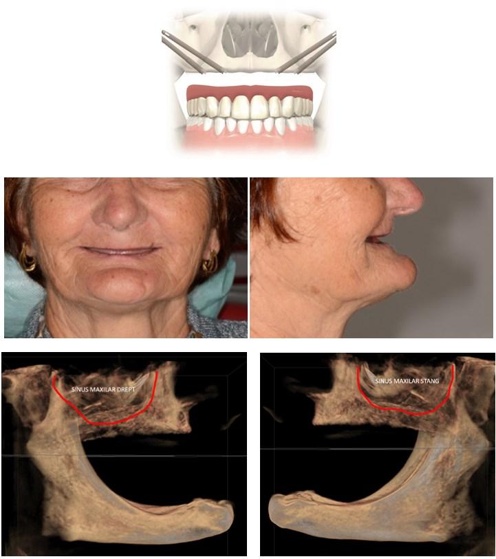 implanturi zigomatice9