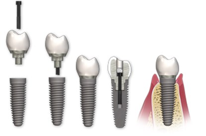 lucrari dentare insurubate pe implant, implanturi si tipuri de lucrari