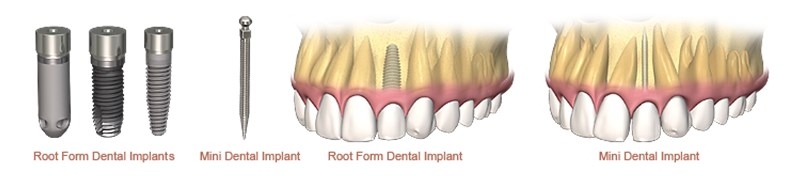 miniimplanturi dentare, implanturi si tipuri de lucrari