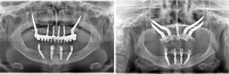 radiografii-implanturi-zigomaticejpg
