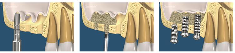 Augmentare sinuzala pe cale interna si implantare simultana