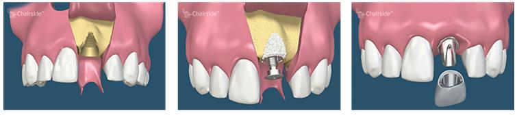 Grefare si implant simultan pentru un singur dinte lipsa