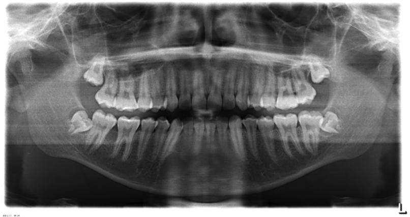 radiografii 2