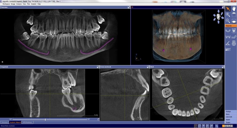 radiografii 5