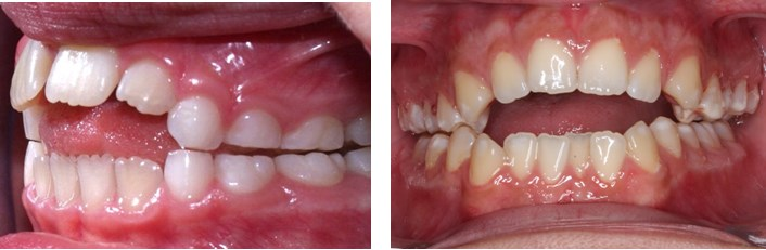 Ortodontie - indreptarea dintilor2