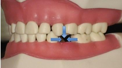 Ortodontie - indreptarea dintilor5