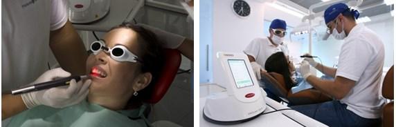 Terapie - caria dentara5