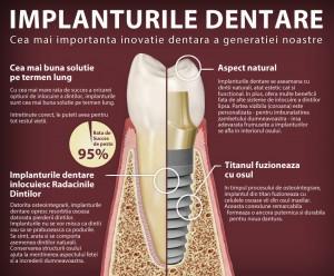 dental-implants-101-large copy