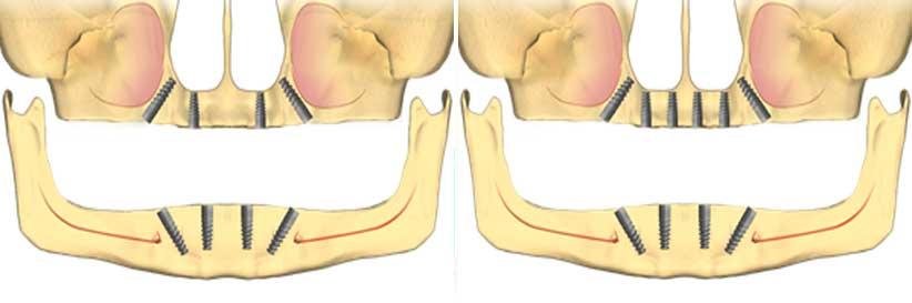 exemple-4-sau-6-implanturi-dentare