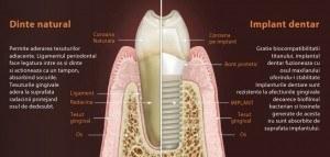 implant vs dinte copy