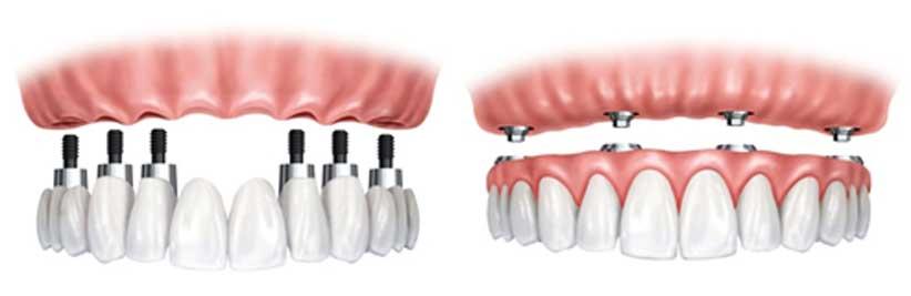 lucrari-dentare-totalfix