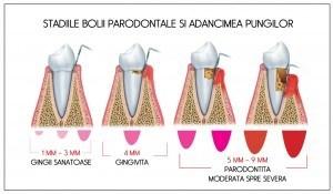 pungi si progresia bolii parodontale.