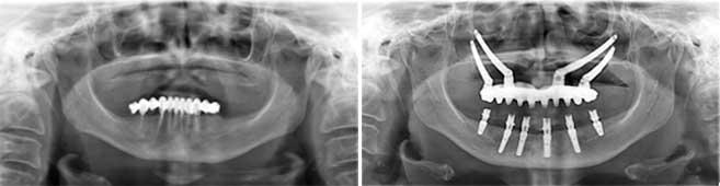 radiografii-rezultatele-tratamentului-qz