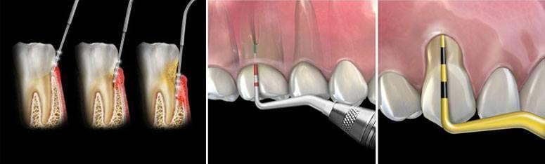 sondare-parodontala