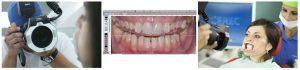 1_estetica dentara-investigatii si digital smile design dsd