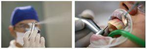 5_estetica dentara slefuirea dintilor