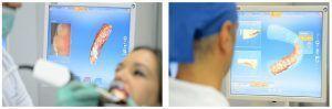 6_estetica dentara amprenta digitala cerec