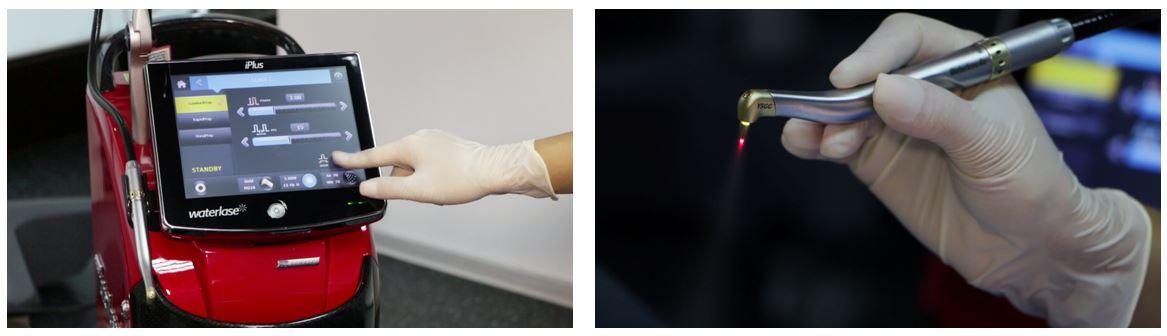 5_laser dentar chirurgical