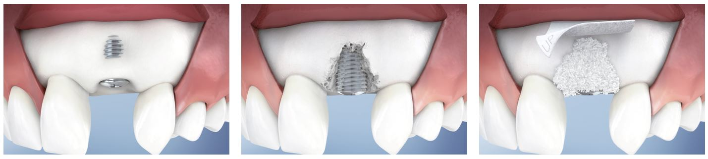 dehiscenta implant dentar