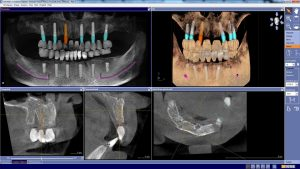 tomografie-dentara-cbct2