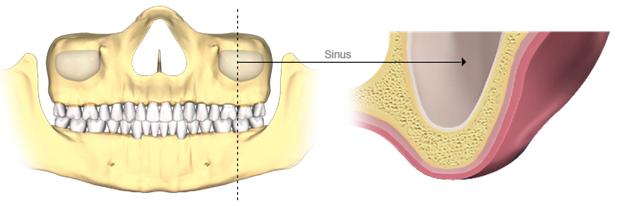 greutatea pierde maxilarul
