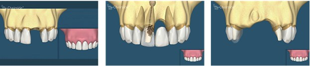 Implant dentar comparativ cu puntea dentara
