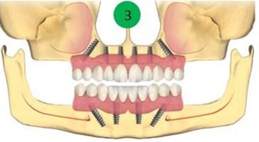 Implanturi pentru toti dintii lipsa 1