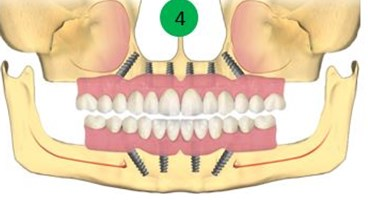 Implanturi pentru toti dintii lipsa 2