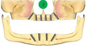 Implanturi pentru toti dintii lipsa
