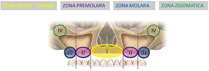 Implanturi zigomatice5