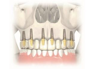 Implanturi zigomatice6