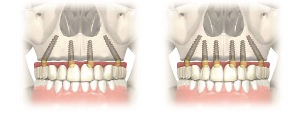 Implanturi zigomatice7